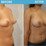 Breast Augmentation Before & After Photo 2018