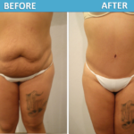 Dr Alavi Tummy Tuck Before & After 2018