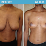 Breast Lift Before and After - Sassan Alavi MD