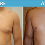 male chest Liposuction and Gyncomastia Surgery before and after | Sassan Alavi MD