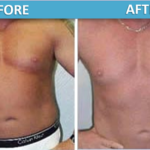 male stomach Liposuction before and after | Sassan Alavi MD