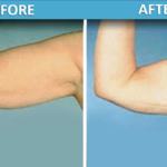 Upper Arm Liposuction before and after | Sassan Alavi MD