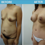Mommy Makeover Before and After - Sassan Alavi MD