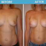 Breast Augmentation Before & After 2018