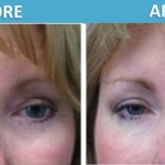 Artefill Before & After - Sassan Alavi MD