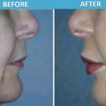 Lip Augmentation with Artefill - Cosmetic Surgery Center