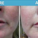 Sassan Alavi MD - Before & After Artefill
