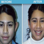 Otoplasty Before & After Photo