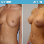 Breast Augmentation Surgery - Sassan Alavi MD
