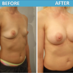 Breast Augmentation Before and After Photos - Sassan Alavi MD