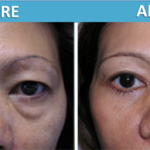 Eye or Brow Cosmetic Surgery Before and After Photos - Sassan Alavi MD
