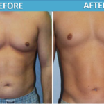 male stomach Liposuction Sassan Alavi MD