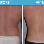 male love handles Liposuction before and after   Sassan Alavi MD