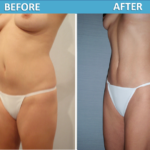 Liposuction before and after | Sassan Alavi MD