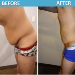 Male Tummy Tuck - side view Cosmetic Surgery Center San Diego