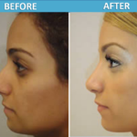 Rhinoplasty Before and After - Sassan Alavi MD
