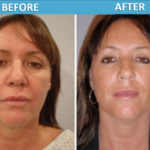 Weekend Mini Face lift - Sassan Alavi MD