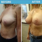 Breast Lift Mastopexy Before and After Photos - Sassan Alavi MD