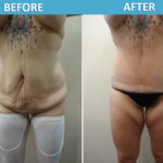 Tummy Tuck Before and After - Sassan Alavi MD